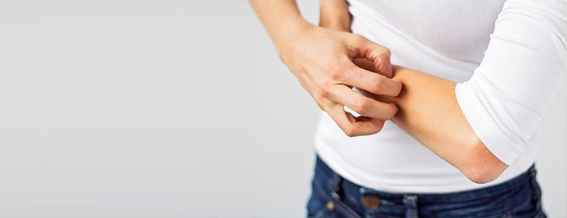 I rimedi naturali per l'allergia della pelle